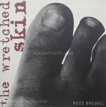 Koos Breukel,The Wretched skin (DEDICATED)